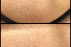 intim-nach-nur-1er-Laserbehandlung